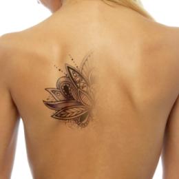 Удаление татуировок более 20 кв. см.