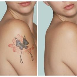 Удаление татуировок до 10 кв. см.