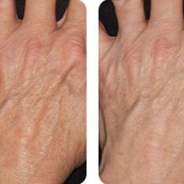 Термолифтинг: кисти рук