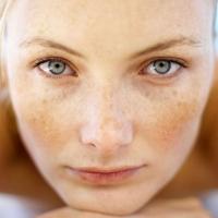 Отбеливание кожи – осенняя процедура