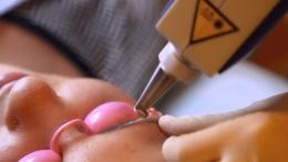 Лазерное выведение татуажа